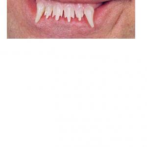 glowing werewolf teeth